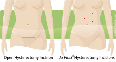 Minimally invasive surgery diagram.